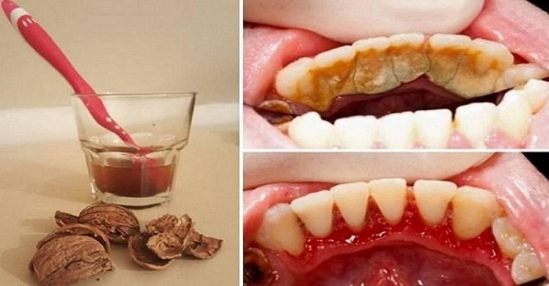 Как убрать зубной камень дома: 3 простых способа (можно смело улыбаться)