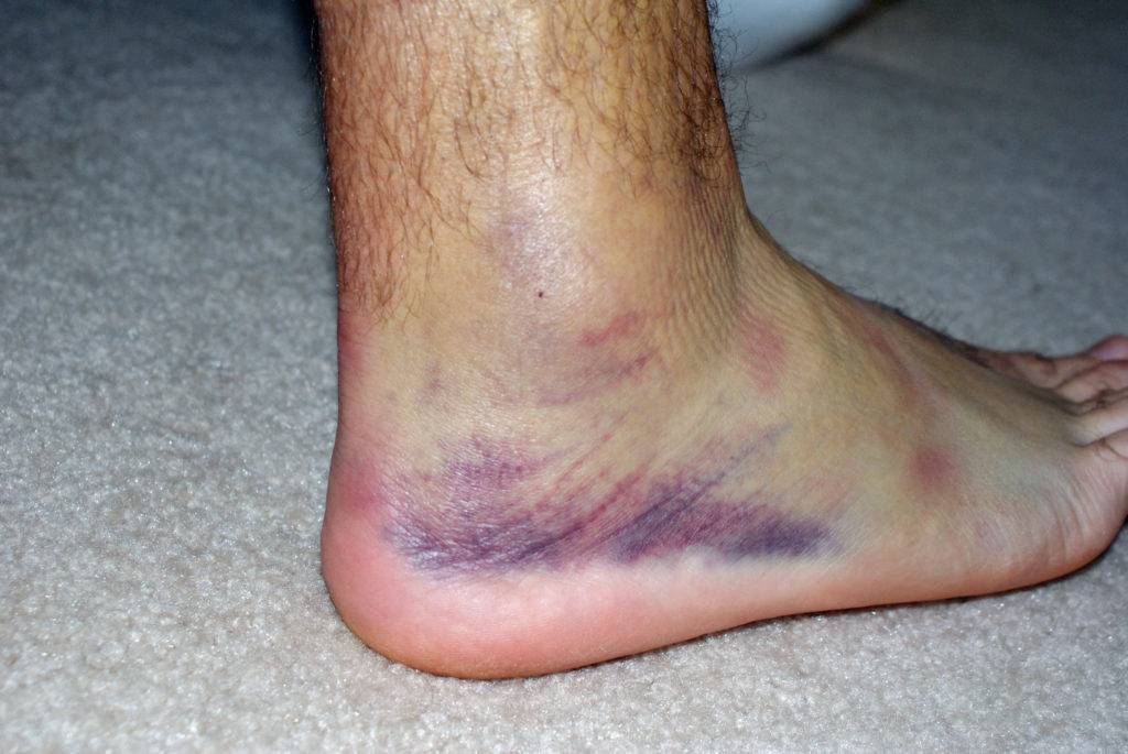 Лечение гемотомы на ноге после ушиба
