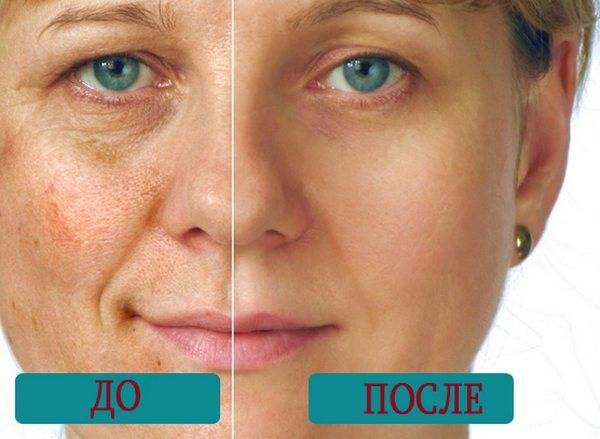 Лазерная чистка лица: особенности процедуры и ее эффективность