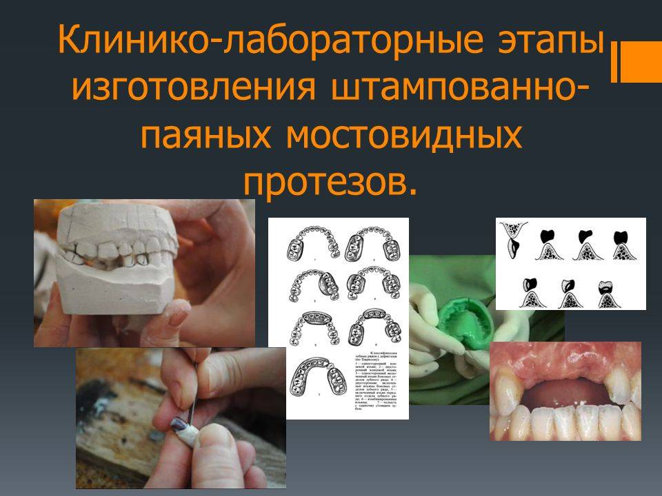 Цельнолитые мостовидные протезы: изготовление и установка, плюсы и минусы