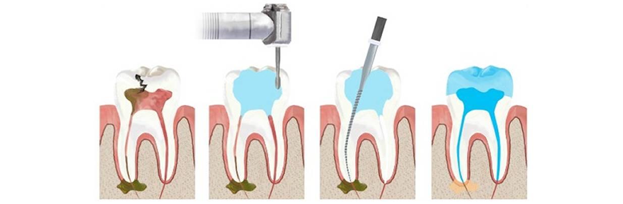 Пломбирование каналов зубов: показания к применению, методика