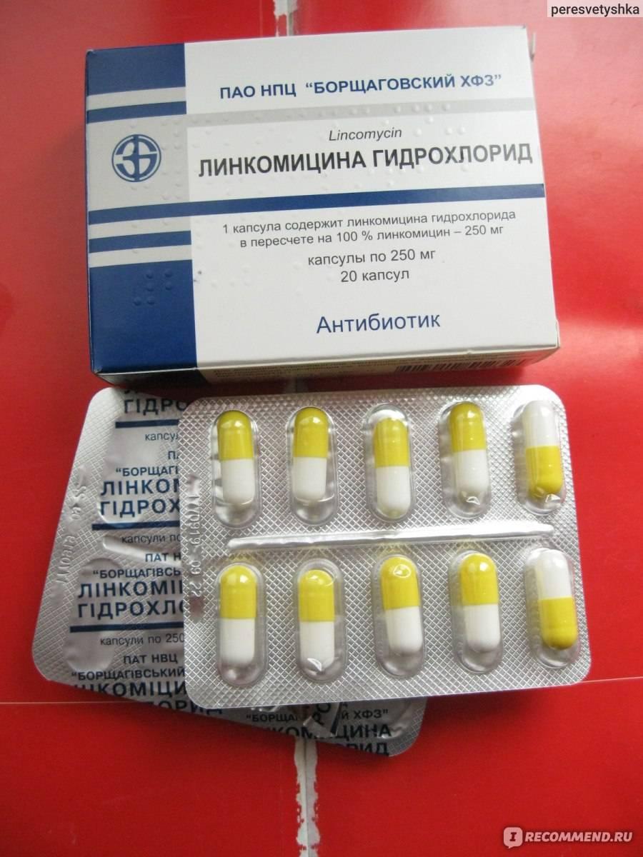 Антибиотик при кисте зуба у взрослого