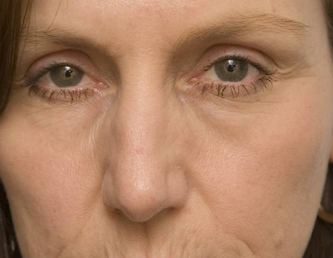 Желтые мешки под глазами. желтизна под глазами: причины возникновения и особенности лечения