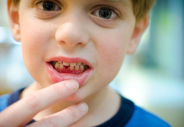 Красные точки на деснах у ребенка: фото, причины, осложнения, лечение