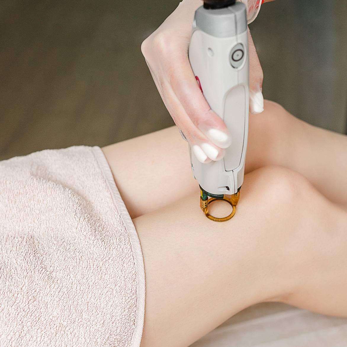 Можно ли делать лазерную эпиляцию на татуировке?