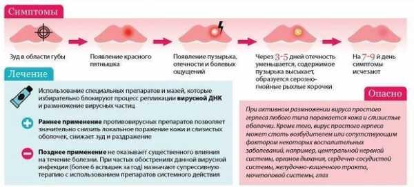Герпес на внутренней стороне губы: как лечить простуду (препараты, народные средства), симптомы и причины появления у взрослых и детей (фото, видео)