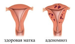 Диффузные изменения миометрия по типу аденомиоза, эндометриоза, очаговые, узловые: что это значит?