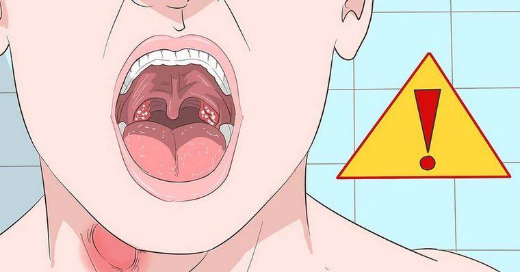 Постоянная слизь в горле — причины и лечение. как избавиться от слизи в горле у взрослого и у ребенка