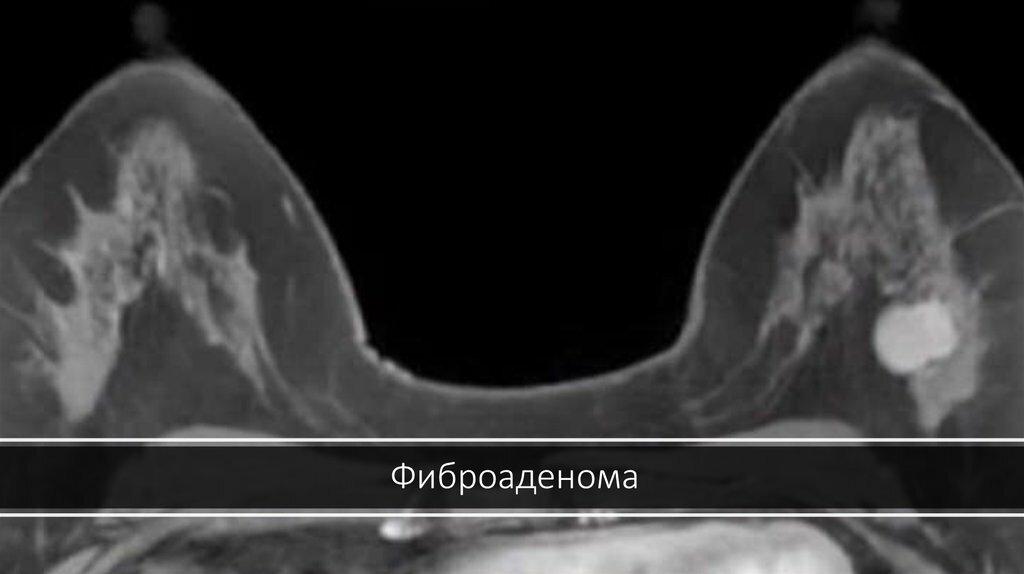 Причины проявления фибромы молочной железы