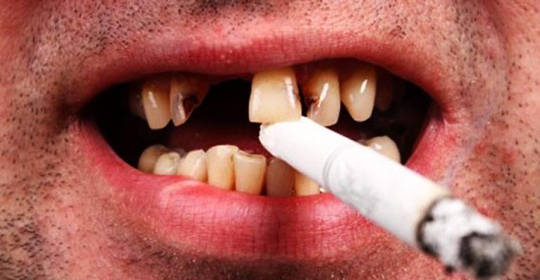 Как меняется состояние зубов при курении?