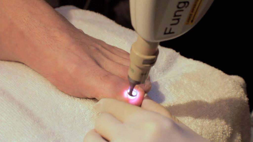 Лазерное удаление мозолей на ногах