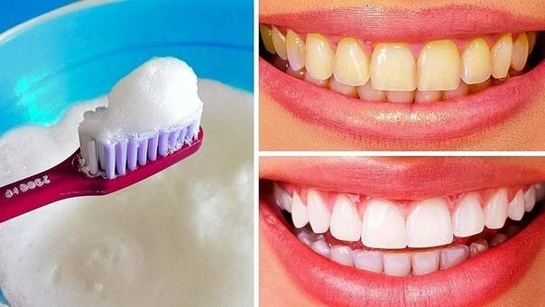 Можно ли чистить зубы пищевой содой?
