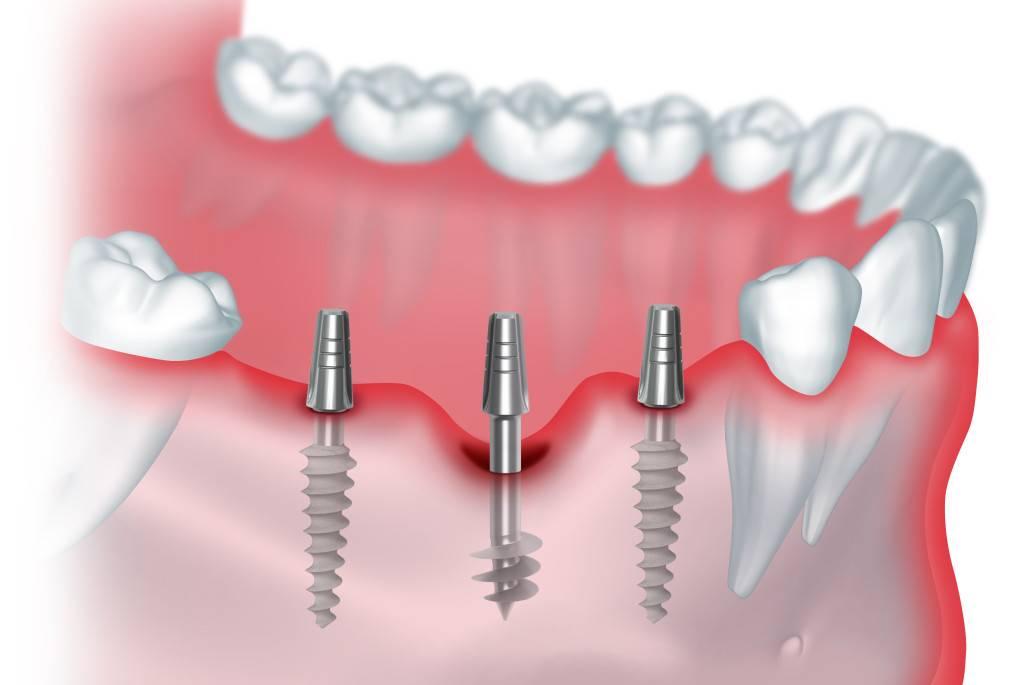 Виды установки зубных имплантов