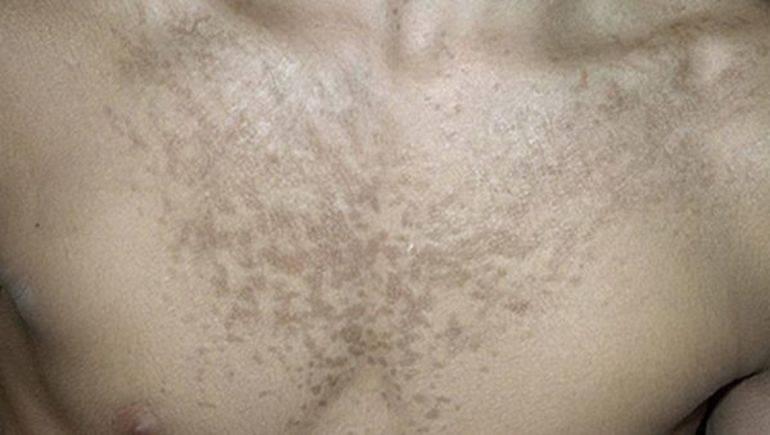 Лишай на лице – причины, симптомы, способы лечения и профилактики