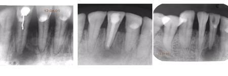 Депофорез корневого канала зуба это