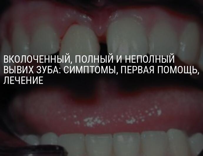 Вывихи зубов