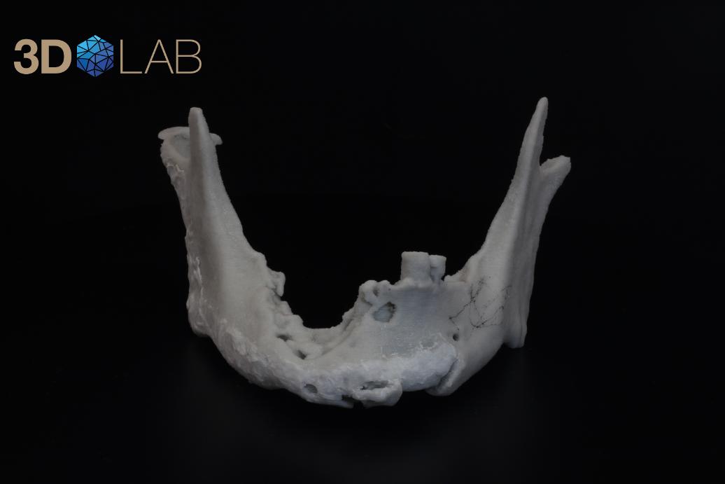 Остеонекроз челюсти: что это такое, симптомы и признаки, некроз нижней челюсти вследствие лечения бисфосфонатами