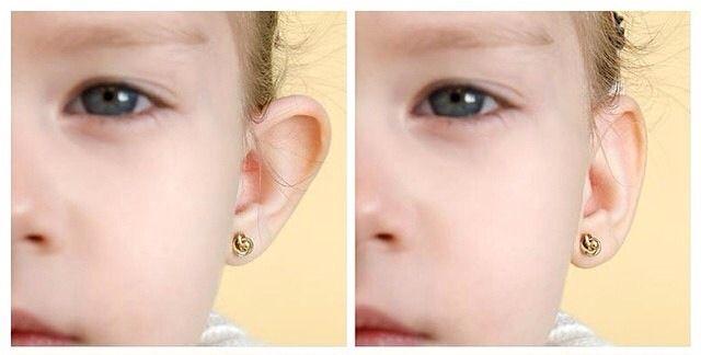 Ушные корректоры — исправление лопоухости