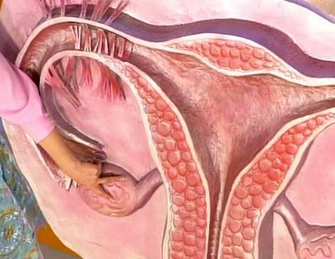 Половые отношения и беременность при воспалении яичников