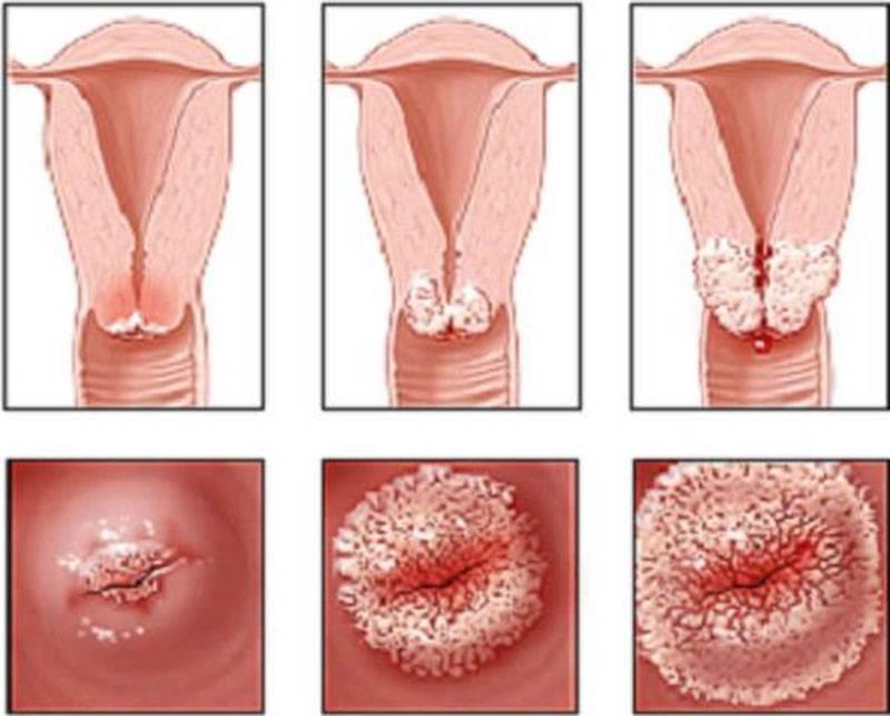 Эрозия шейки матки – лечить или не лечить?