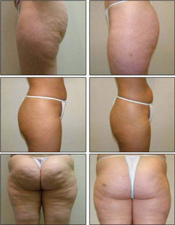 Баночный массаж ― эффективное похудение живота и избавление от целлюлита
