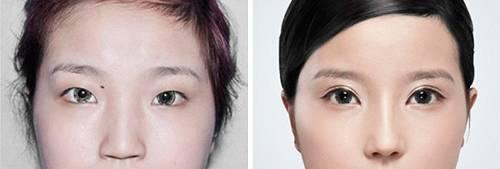 Операция по увеличению глаз: до и после
