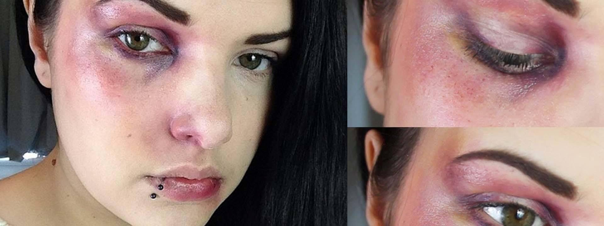 Как убрать гематому на лице – лечение и способы быстрого избавления