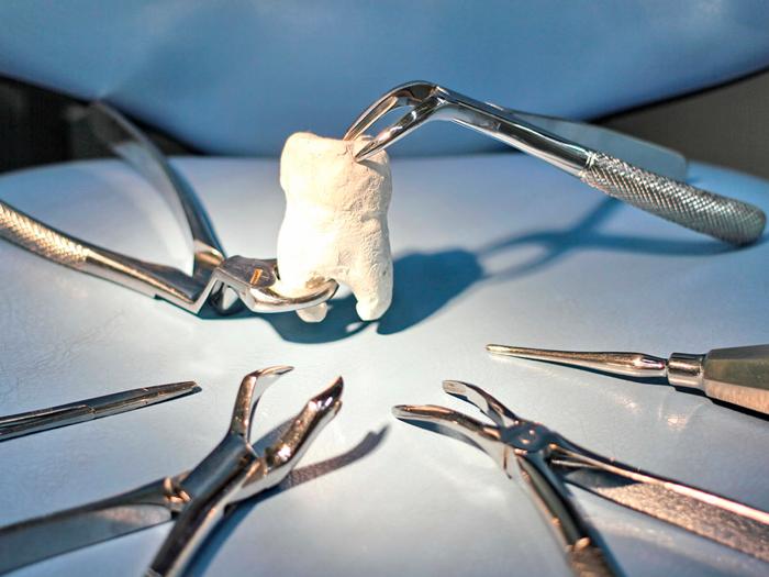 Что такое сложное удаление зуба