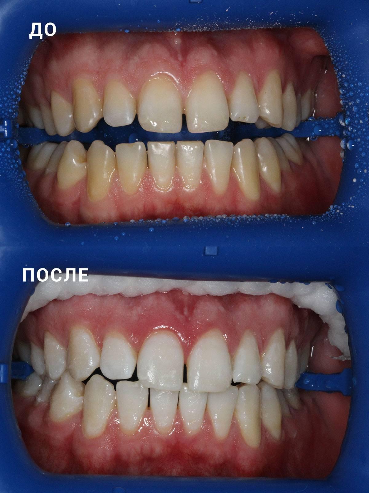 Отбеливание зубов сколько держится эффект