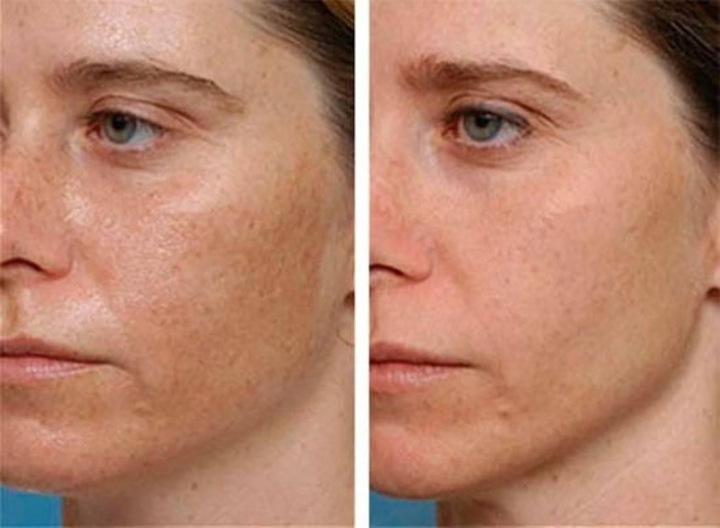 Очищение кожи лица в домашних условиях с помощью миндального пилинга