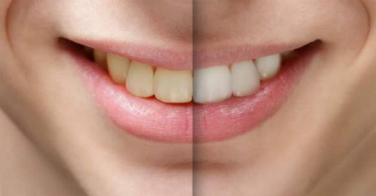 Белая язвочка на десне: причины, лечение, фото