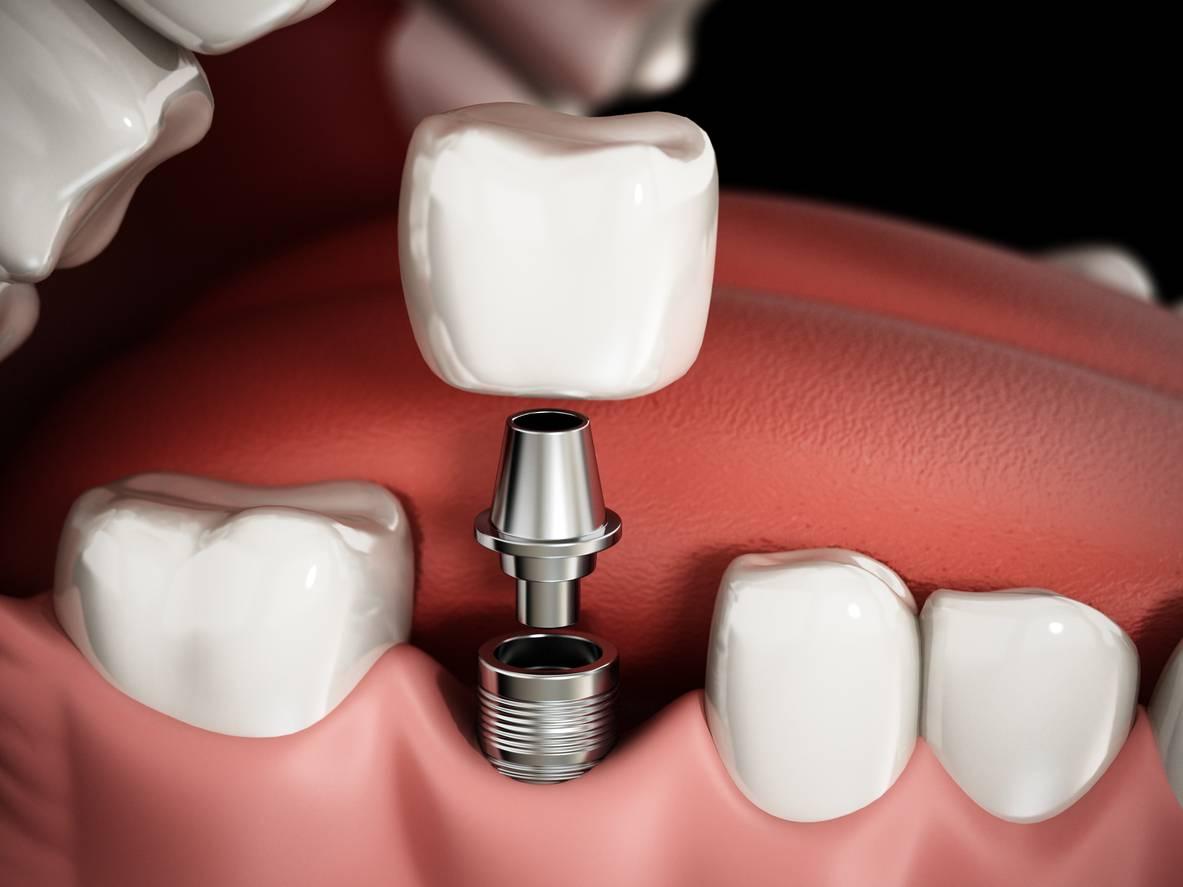 В чем преимущества металлокерамической коронки на имплантате, обзор цен