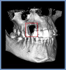 Некроз челюсти: причины, симптомы, особенности лечения и профилактики