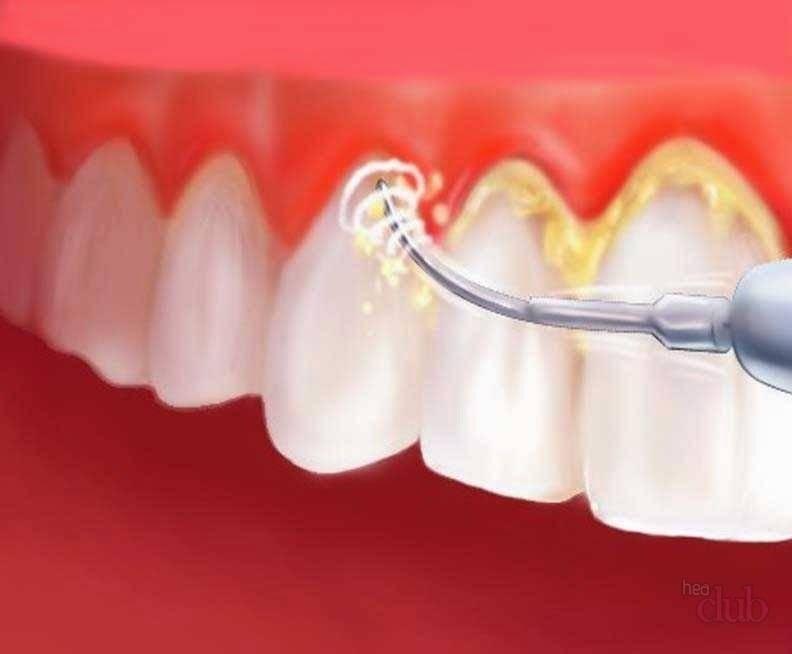 Ультразвуковая чистка зубов для удаления налета и зубного камня