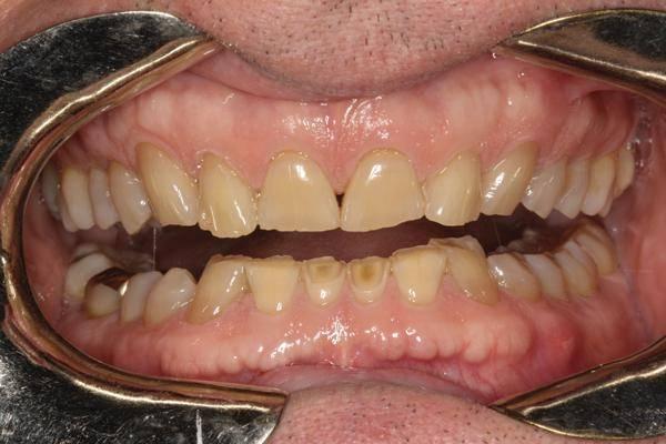 Классификация и симптомы патологической стираемости зубов лечение и профилактика повышенного стачивания