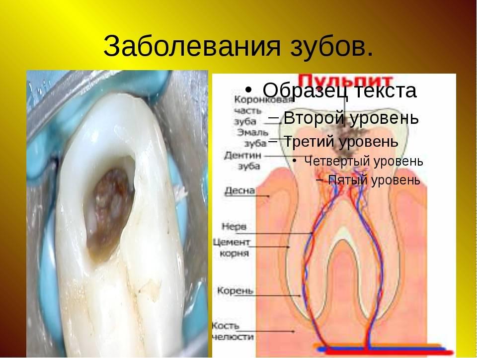 Инфекции ротовой полости: виды, клинические особенности и принципы их лечения