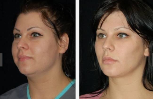 Пухлые щеки — это некрасиво! показания и противопоказания к операции по удалению комков биша