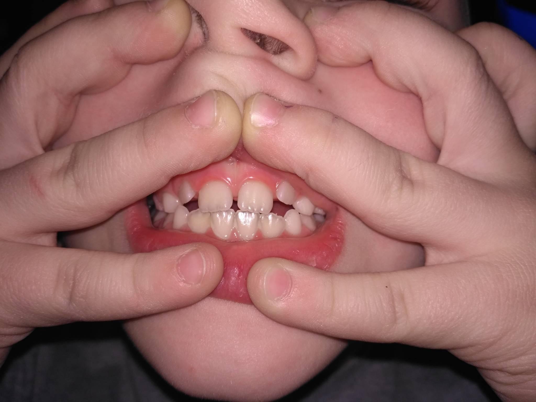 Молочные зубы выпали а новые не растут – надо ли бить тревогу?