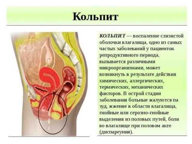 Атрофический вагинит — лечение, симптомы, причины