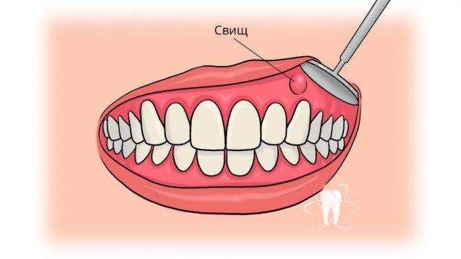 Отверстие в десне около зуба