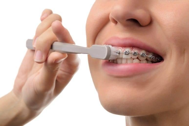 Советы по гигиене полости рта: инструкция по уходу за зубами, правильный выбор средств
