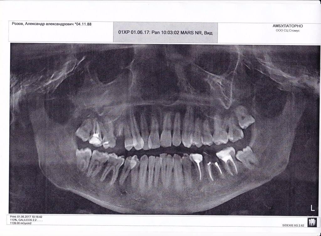 Симптомы и лечение одонтогенного гайморита (синусит) из-за больного зуба