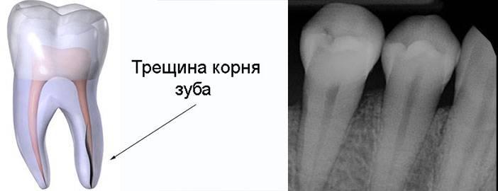 Перелом коронки или корня зуба
