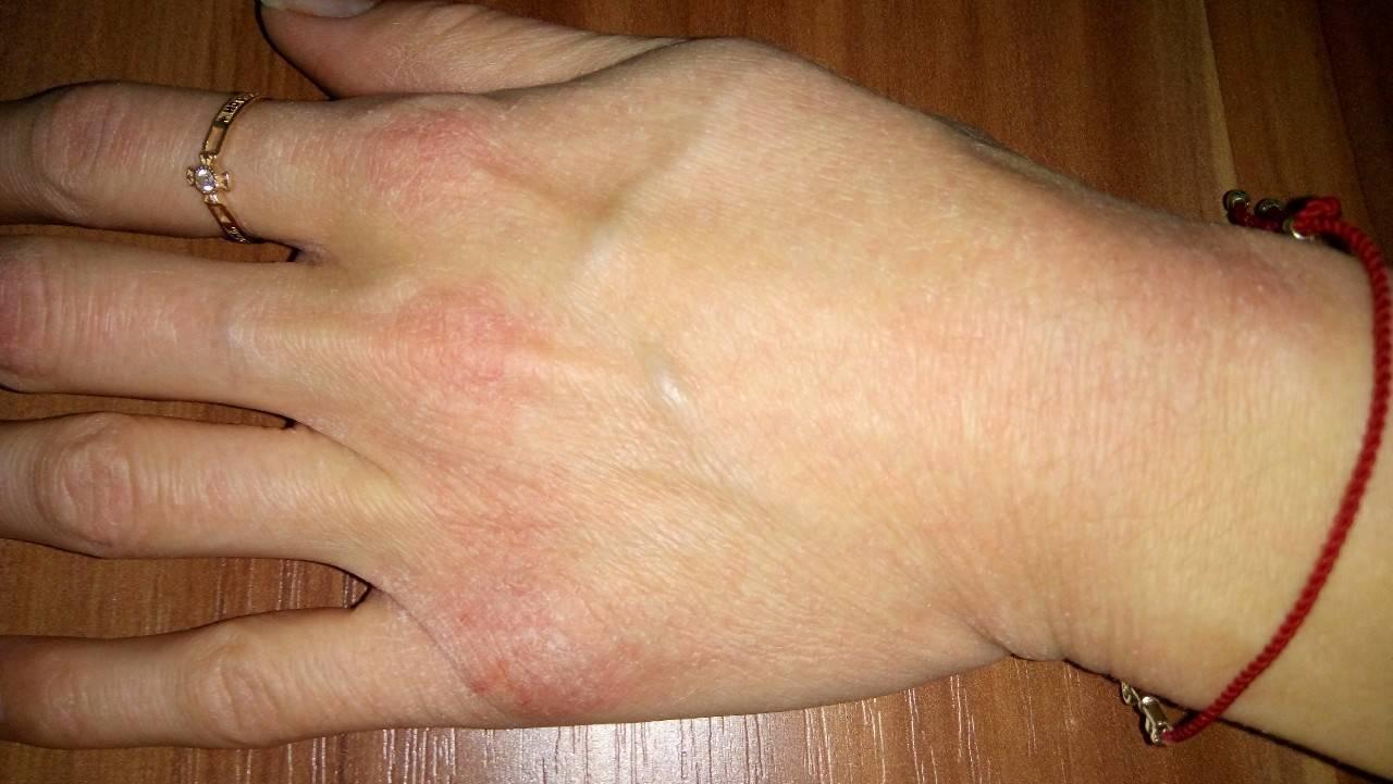 Что делать и как лечить шершавые локти?
