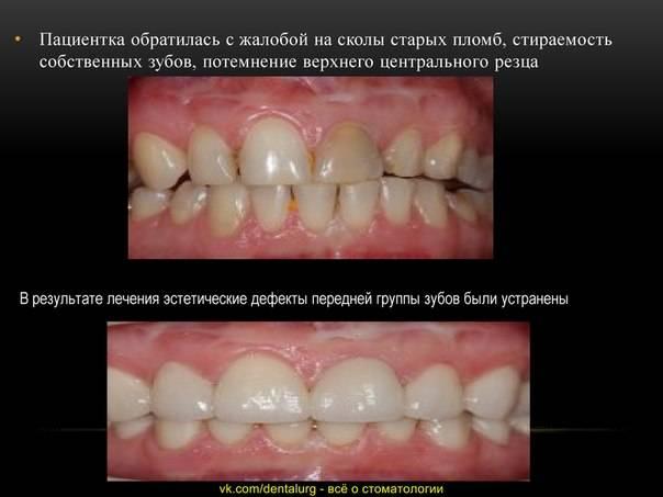 Новые перспективы в области лечения патологической стираемости зубов: восстановление окклюзионных поверхностей