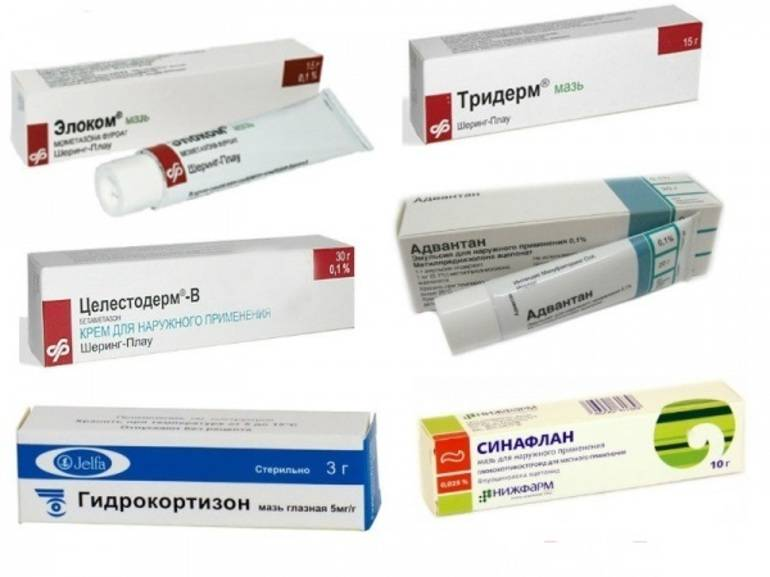 Мази от аллергии на лице: перечень лучших средств