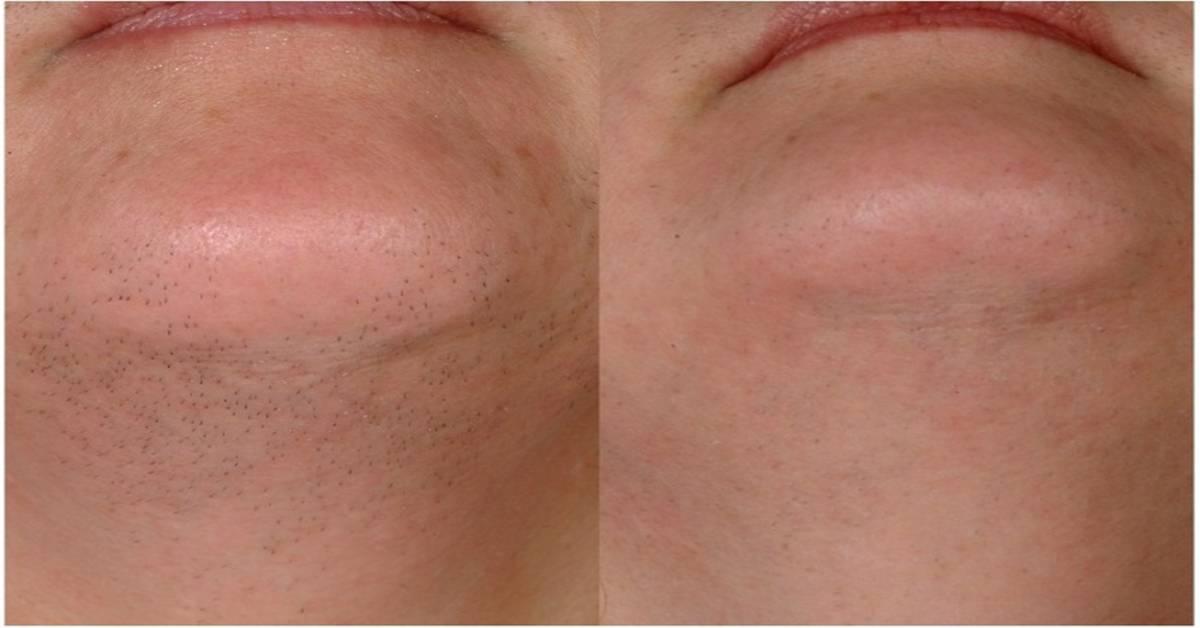 Народное средство очистки лицо от волос. средство для удаления волос навсегда на лице. йод в качестве средства для удаления волос