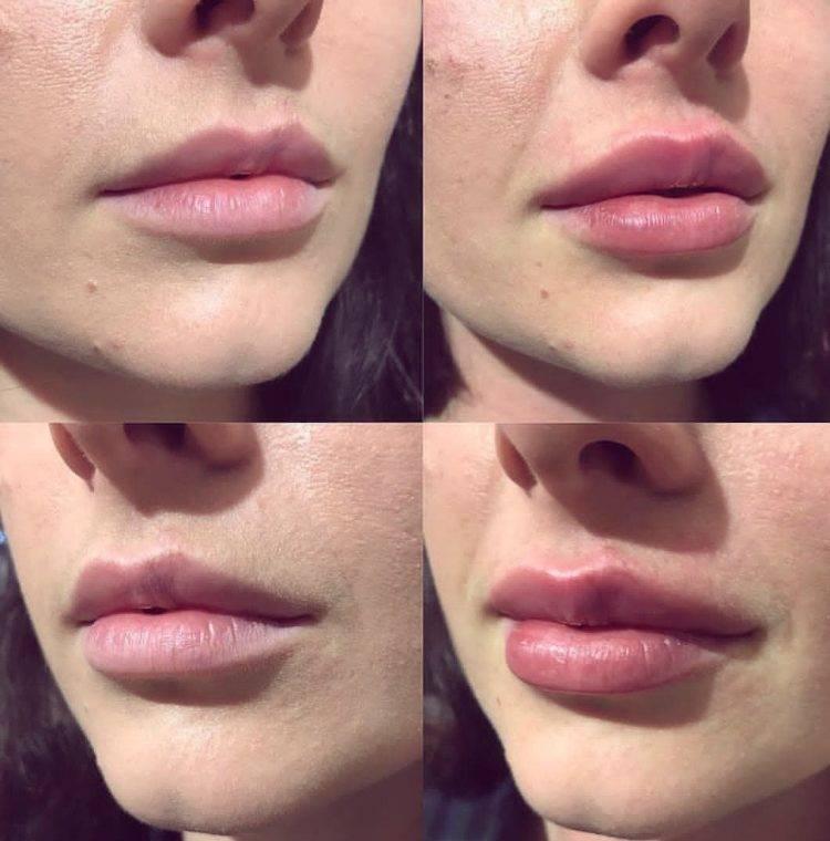 Обзор лучших препаратов для увеличения губ и их названия