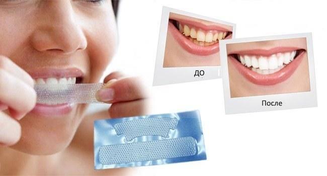 10 способов того, как эффективно отбелить зубы в домашних условиях