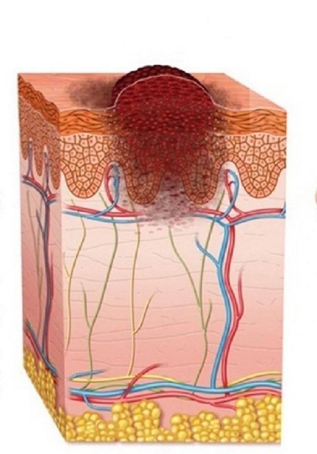 Виды новообразований на коже: причины появления, удаление